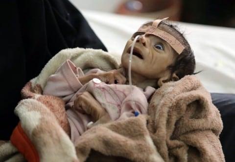 El niño Udai Faisal, que sufre malnutrición, es hospitalizado en el hospital As-Sabeen en Sana, Yemen