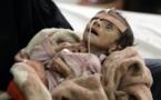 ONU alerta de aumento del hambre en el mundo: 815 millones afectados