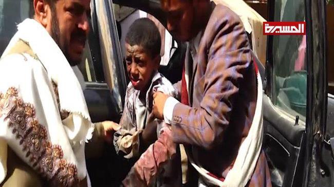 Masacre en Yemen: Ataque saudí a bus escolar mata a decenas de niños