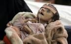 """Conflictos en Oriente Medio y África abren una """"brecha del hambre"""""""