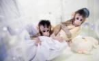 """Científicos chinos clonan monos por primera vez con método de """"Dolly"""""""